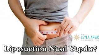 Gerçek güzellik potansiyelinize Liposuction sayesinde ulaşın!