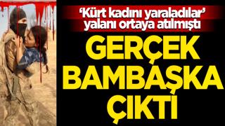 """""""SMO askerleri Kürt kadını yaraladı"""" demişlerdi... Gerçek bakın ne çıktı!"""